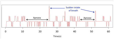 Sleep Apnoea Apneoa Detection